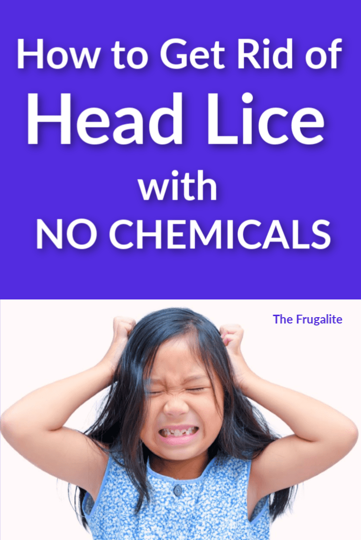 How to Get Rid of Head Lice With NO Chemical Treatments